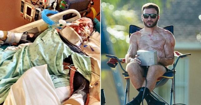 31χρονος άντρας έπαθε ηλεκτροπληξία ισοδύναμη με έξι ηλεκτρικές καρέκλες και επέζησε
